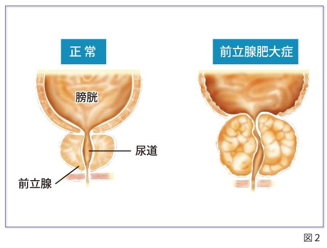 痛み 射精 後 尿